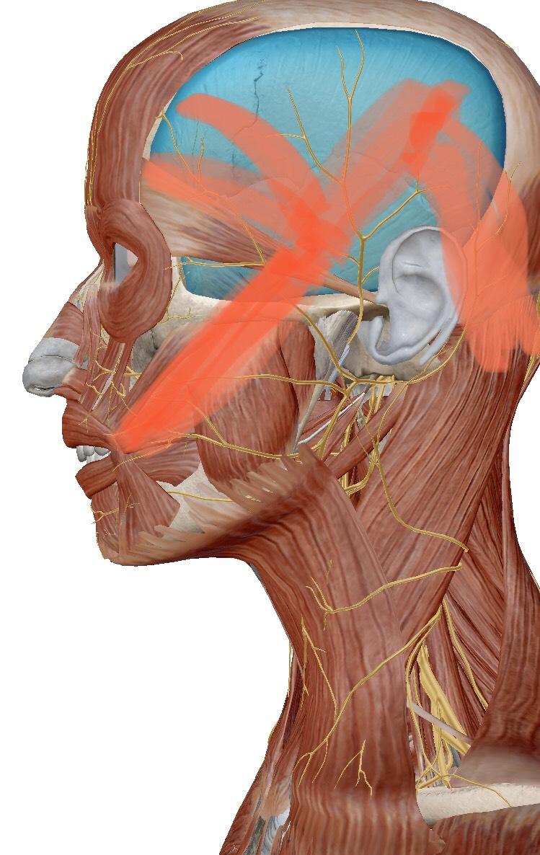側頭筋のトリガーポイント
