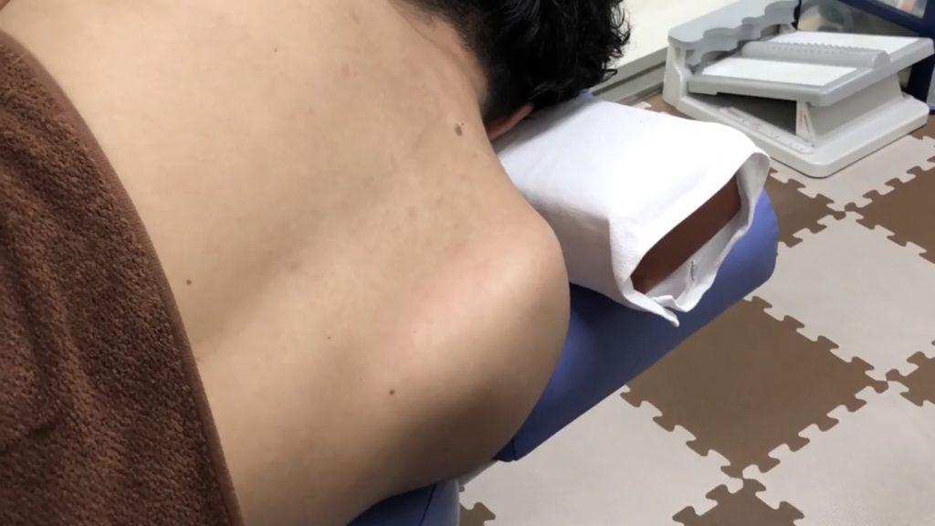 肩甲下筋のトリガーポイント